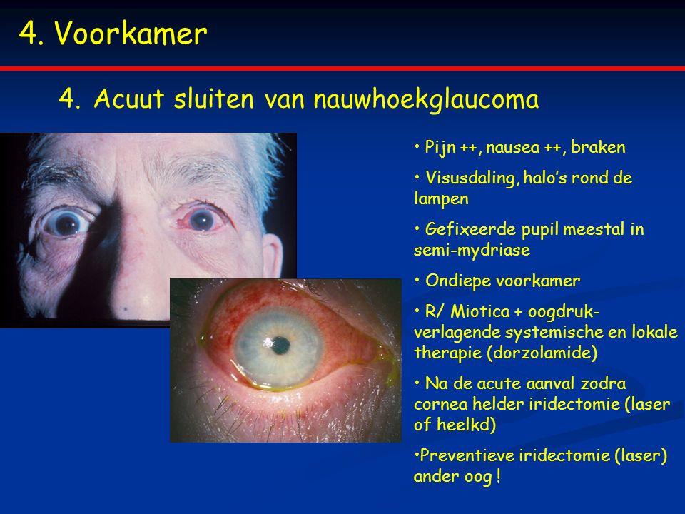 4.Voorkamer 4.Acuut sluiten van nauwhoekglaucoma Pijn ++, nausea ++, braken Visusdaling, halo's rond de lampen Gefixeerde pupil meestal in semi-mydriase Ondiepe voorkamer R/ Miotica + oogdruk- verlagende systemische en lokale therapie (dorzolamide) Na de acute aanval zodra cornea helder iridectomie (laser of heelkd) Preventieve iridectomie (laser) ander oog !
