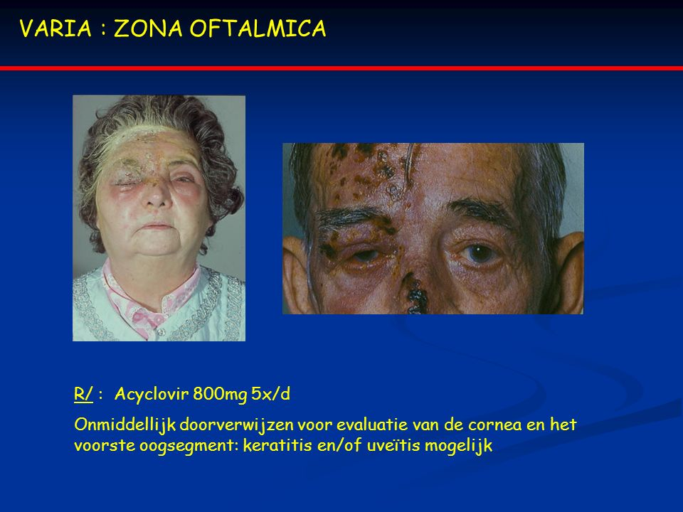 VARIA : ZONA OFTALMICA R/ : Acyclovir 800mg 5x/d Onmiddellijk doorverwijzen voor evaluatie van de cornea en het voorste oogsegment: keratitis en/of uveïtis mogelijk