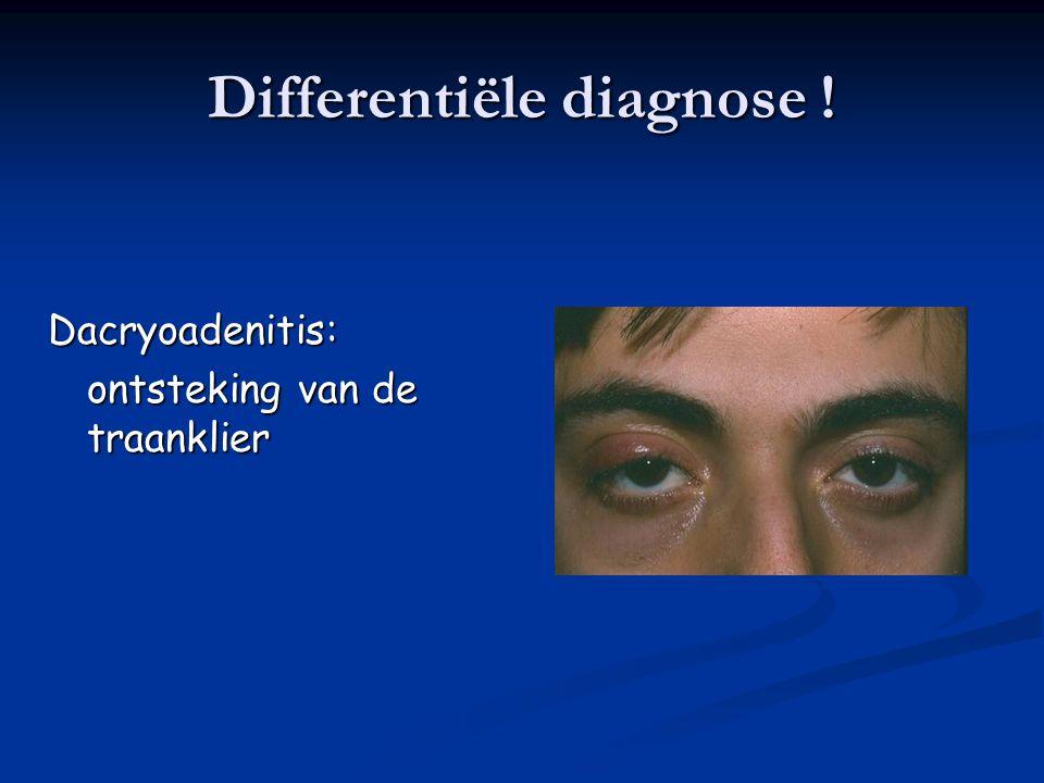 2.Lacrimaal Systeem 2.Acute Infectieuze Dacryoadenitis Infectie van de traanklier Typisch kinderen en jonge volwassenen Presenteert met pijn, roodheid en zwelling ter hoogte van het buitenste 1/3 van het bovenste ooglid Pre-auriculaire klieren
