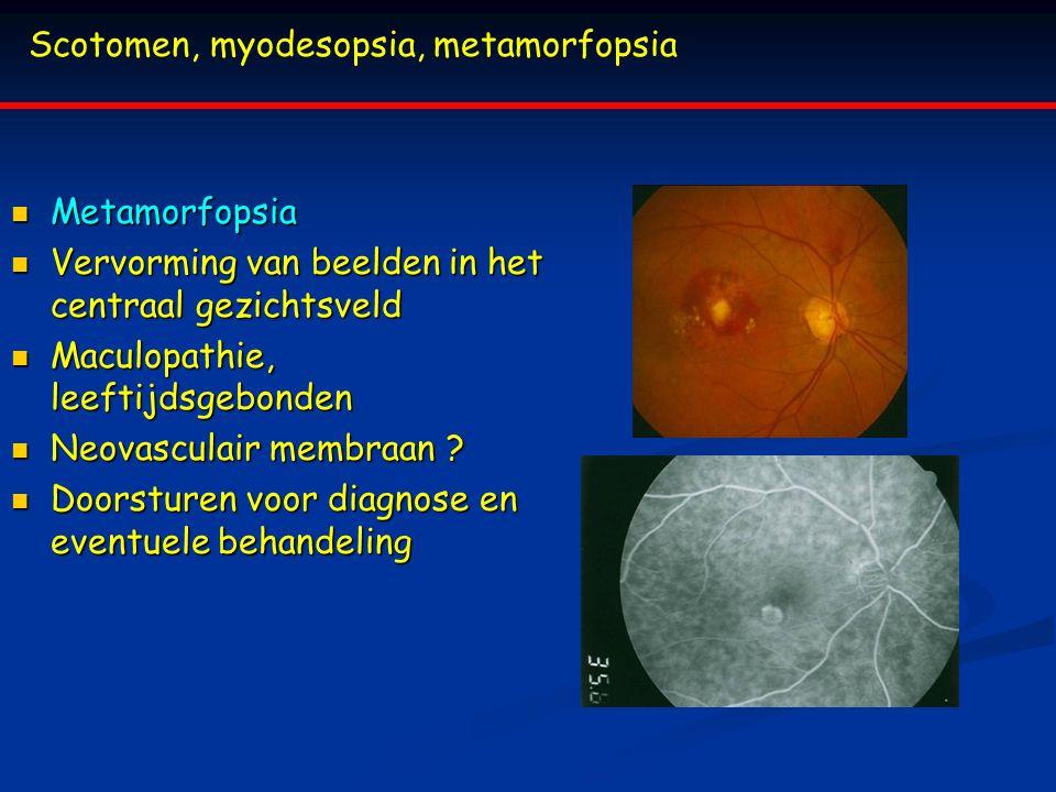 Scotomen, myodesopsia, metamorfopsia Metamorfopsia Metamorfopsia Vervorming van beelden in het centraal gezichtsveld Vervorming van beelden in het cen