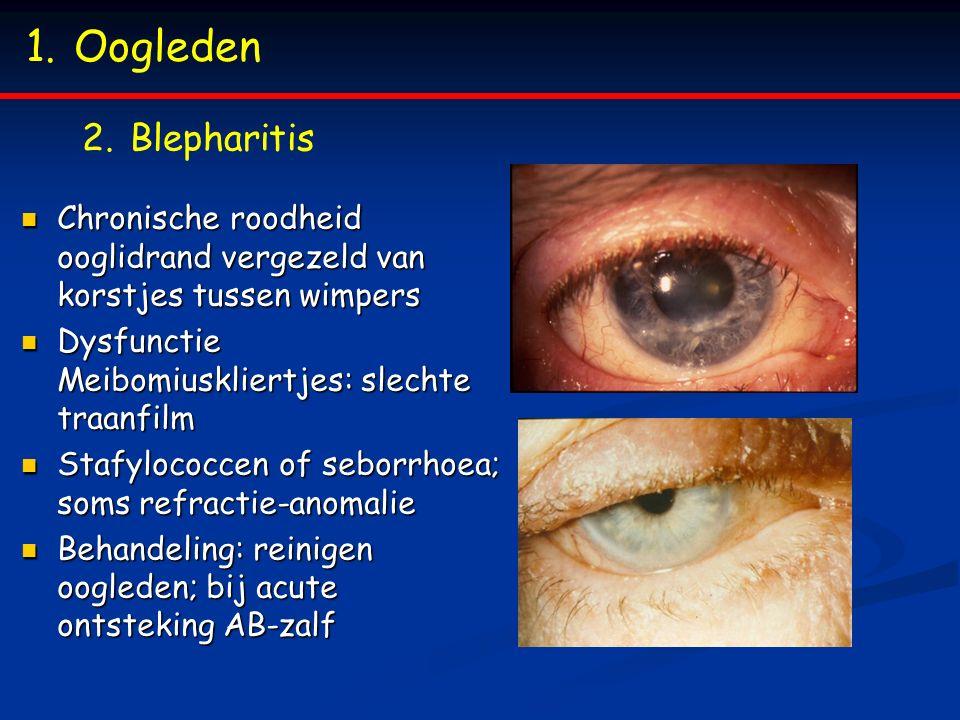 1.Oogleden 2.Blepharitis Chronische roodheid ooglidrand vergezeld van korstjes tussen wimpers Chronische roodheid ooglidrand vergezeld van korstjes tu