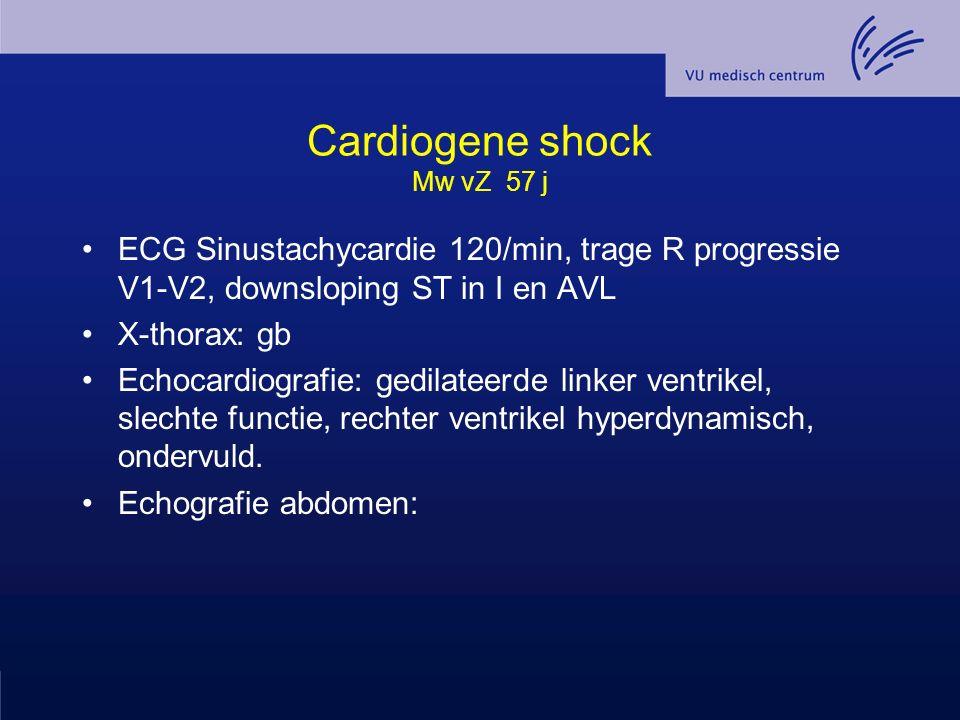 Cardiogene shock Mw vZ 57 j ECG Sinustachycardie 120/min, trage R progressie V1-V2, downsloping ST in I en AVL X-thorax: gb Echocardiografie: gedilate