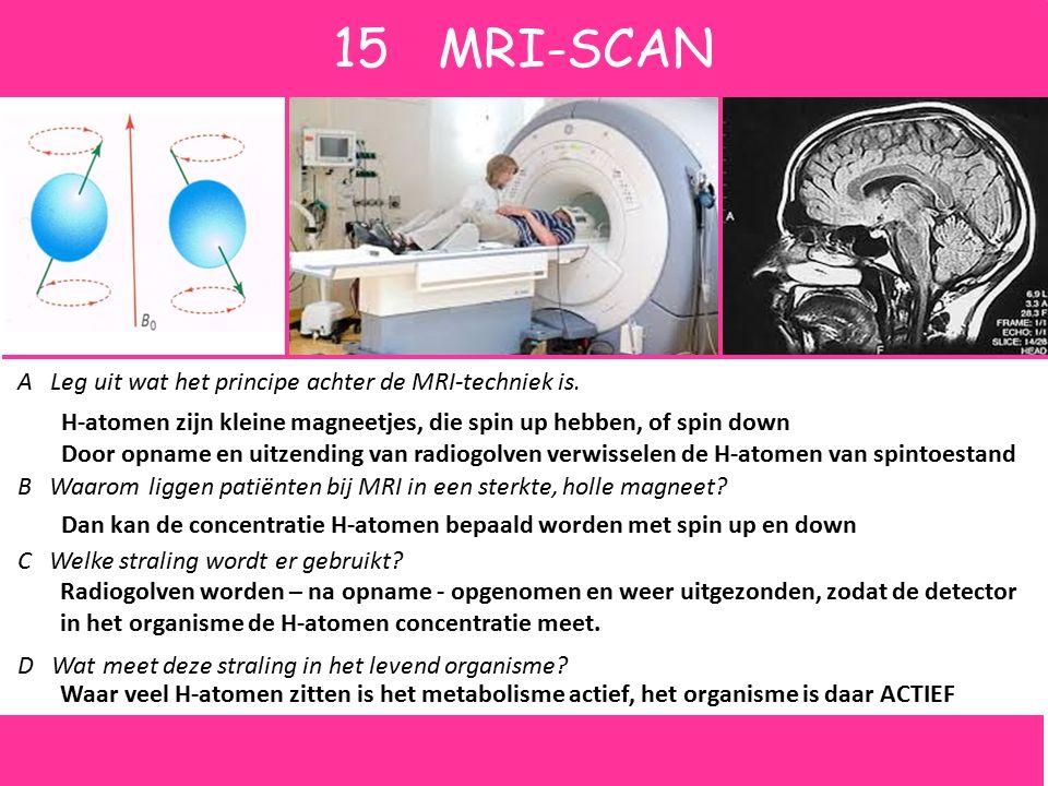 3CT-SCAN Hiernaast zie je een schematische afbeelding waarin het idee van een Computer Tomografie scan wordt uitgelegd, de CT-scan. A Leg uit hoe zulk