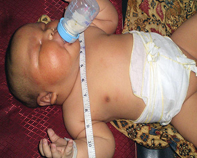 Prevalentie van GDM bij risico-zwangeren en insuline therapie Screenen vlgs RL NVOG (75 grams OGTT AD 24-28) N=471 zwangeren,2009-2011 Bij 24.2% (n=114) diagnose GDM gesteld 77.2% dieet voldoende (n=88/114) 22.8% insuline –hogere glucose op T 2 uur (9.7 vs 8.9 mmol/l) –geen verschil in nuchtere waarde (5.5 vs 5.2 mmol/l) –32,5% had 2 of 3 risicofactoren I Arendz et al.