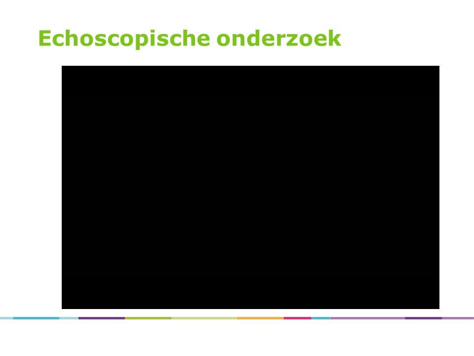 Echoscopische onderzoek