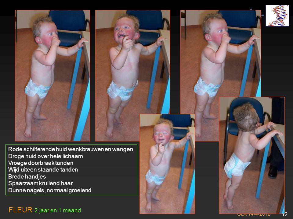 GLA 14-4-2012 13 Differentiaal diagnose: - CFC S - Noonan S - Costello S minder waarschijnlijk Bloedingsneiging.
