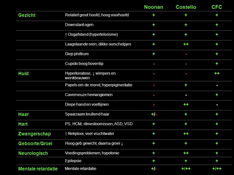 GLA 14-4-2012 18 Noonan Syndroom .