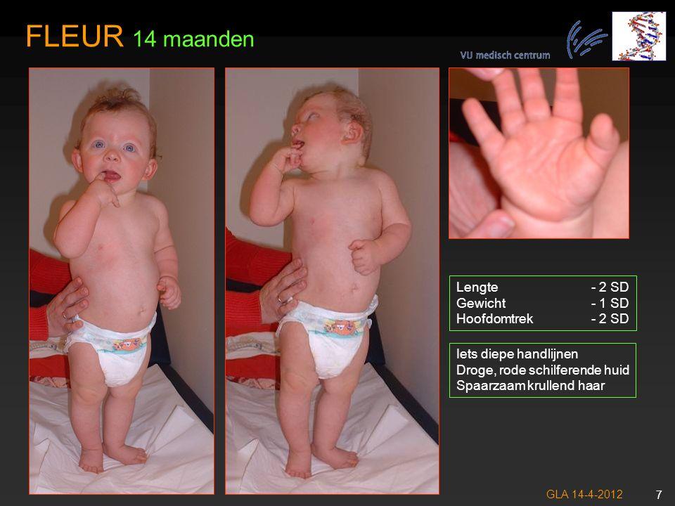 GLA 14-4-2012 8 Geen wenkbrauw beharing Spaarzame oogharen Hoog voorhoofd, bitemporaal vernauwing FLEUR 14 maanden