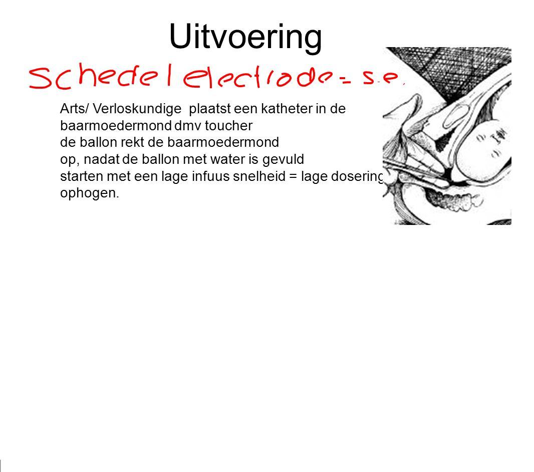 Uitvoering Arts/ Verloskundige plaatst een katheter in de baarmoedermond dmv toucher de ballon rekt de baarmoedermond op, nadat de ballon met water is gevuld starten met een lage infuus snelheid = lage dosering i.o.m.