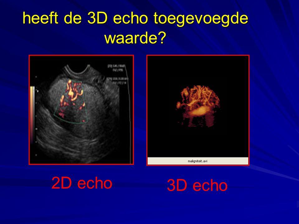 heeft de 3D echo toegevoegde waarde? 2D echo 3D echo