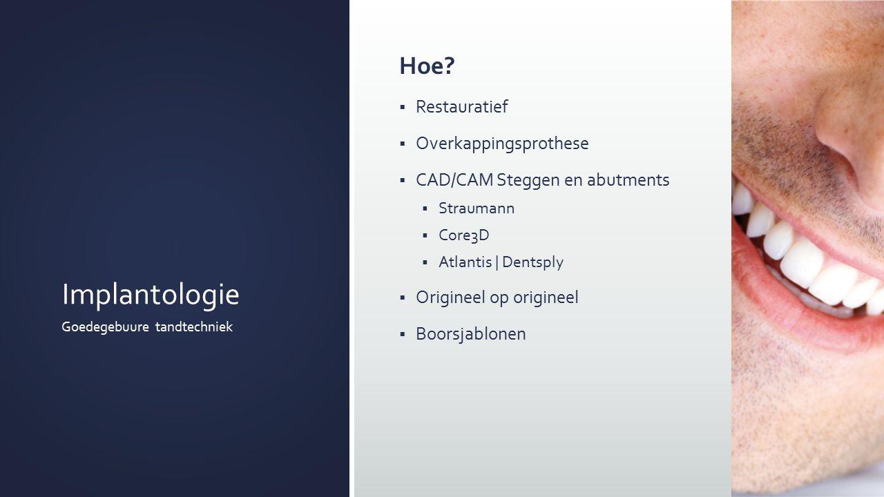 Implantologie Goedegebuure tandtechniek Hoe.