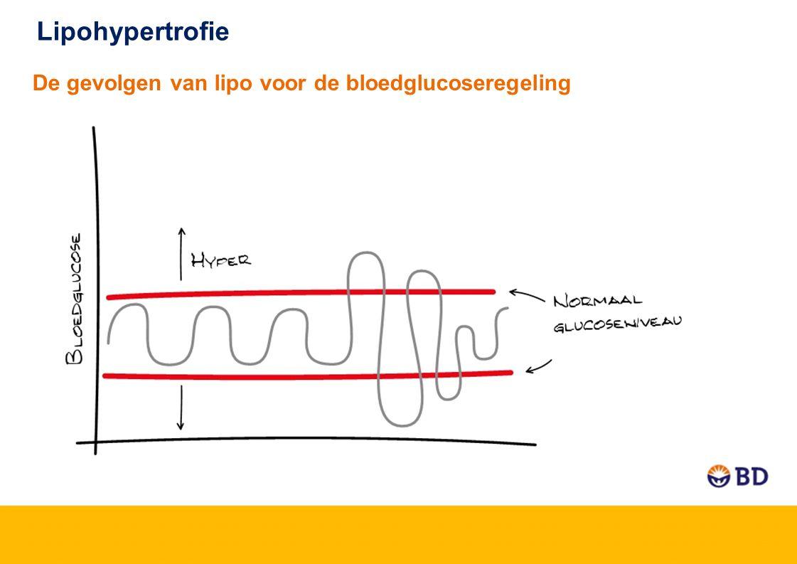 Lipohypertrofie De gevolgen van lipo voor de bloedglucoseregeling