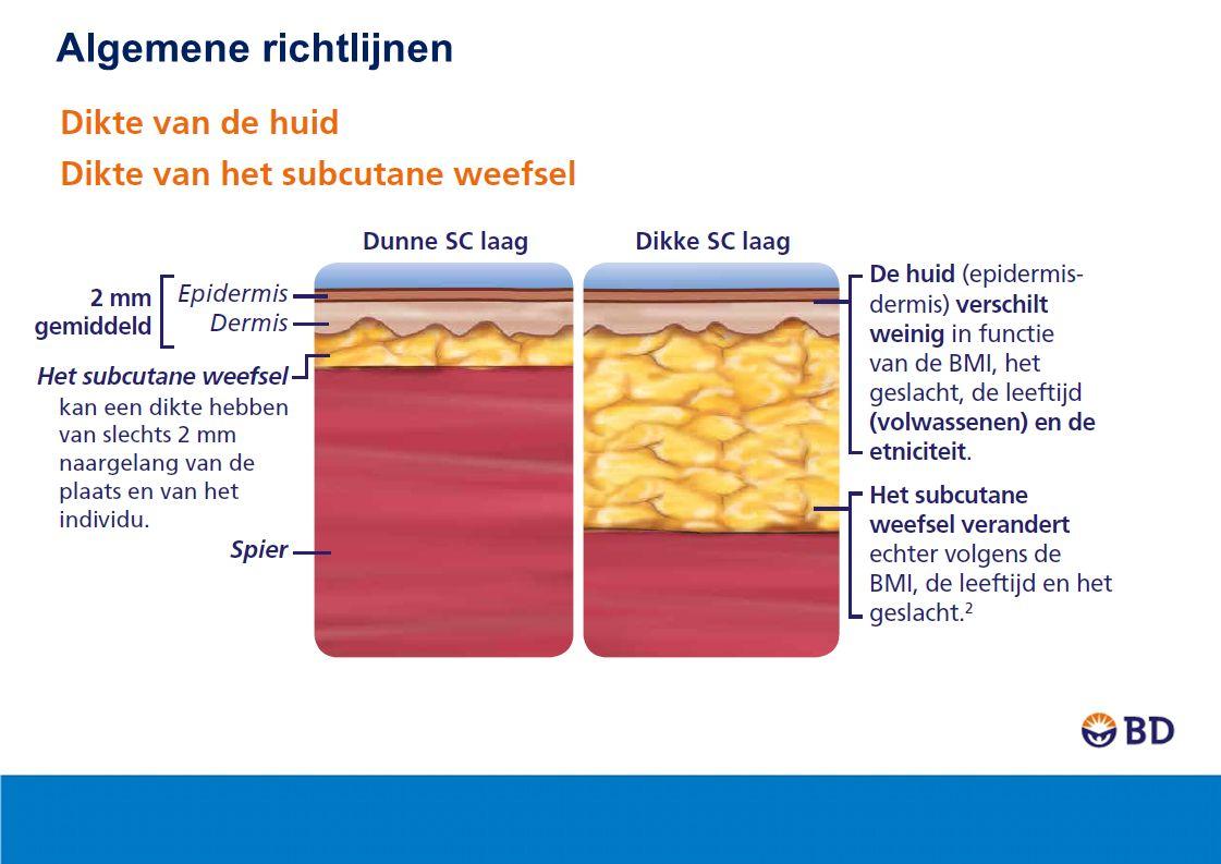 2 In welke lichaamsdelen insuline of GLP-1 injecteren? Algemene richtlijnen