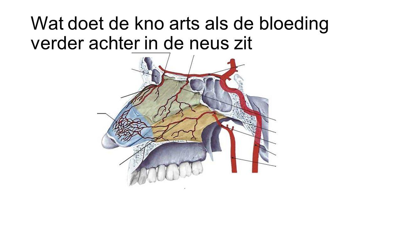 Wat doet de kno arts als de bloeding verder achter in de neus zit