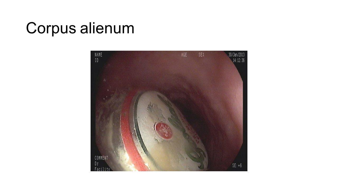 Corpus alienum