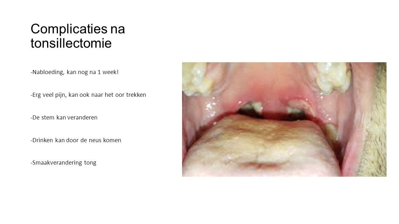 Complicaties na tonsillectomie -Nabloeding, kan nog na 1 week! -Erg veel pijn, kan ook naar het oor trekken -De stem kan veranderen -Drinken kan door