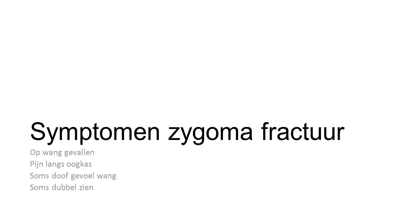 Symptomen zygoma fractuur Op wang gevallen Pijn langs oogkas Soms doof gevoel wang Soms dubbel zien