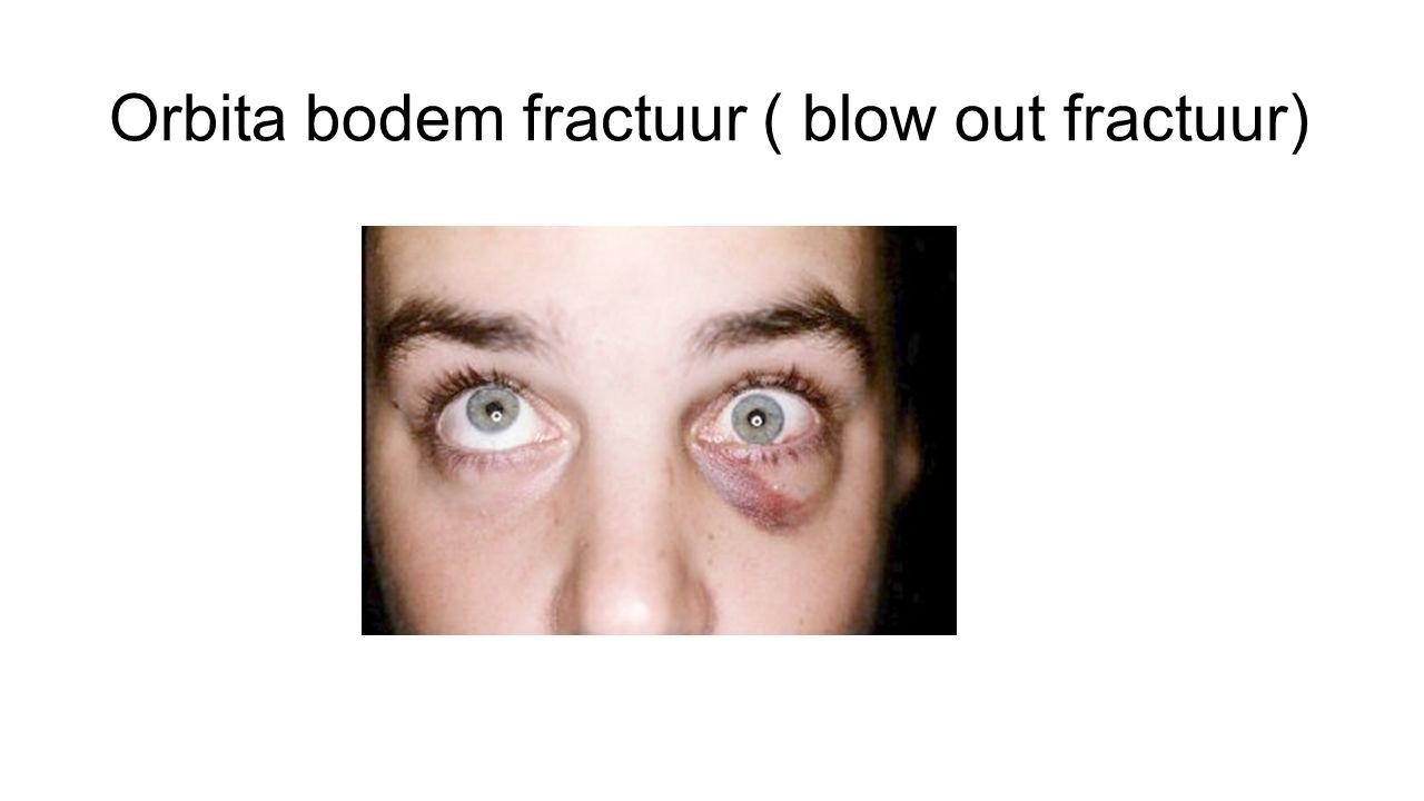 Orbita bodem fractuur ( blow out fractuur)