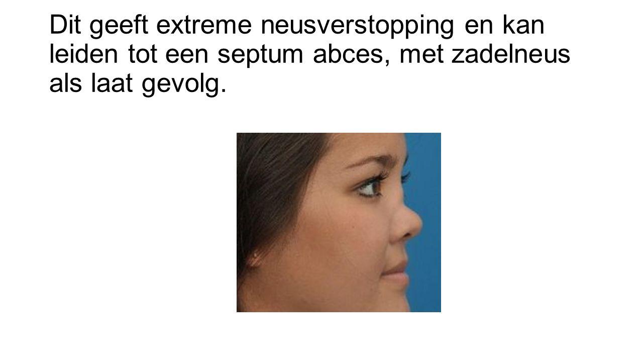 Dit geeft extreme neusverstopping en kan leiden tot een septum abces, met zadelneus als laat gevolg.