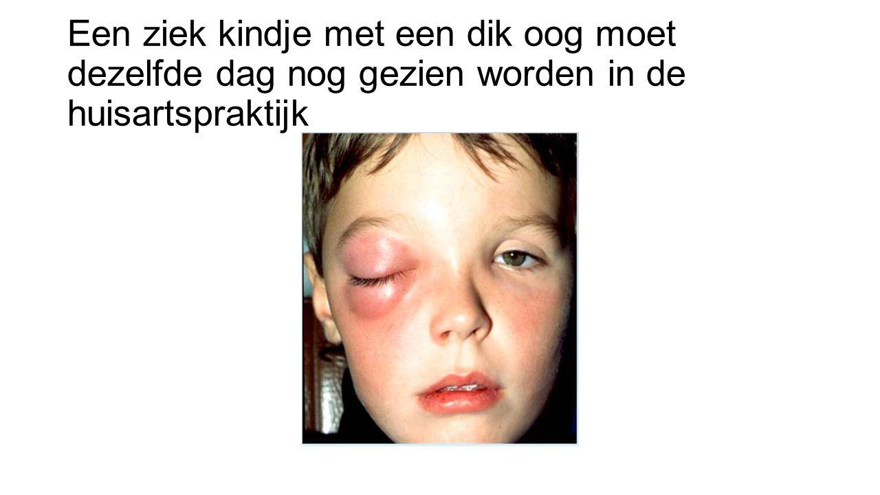 Een ziek kindje met een dik oog moet dezelfde dag nog gezien worden in de huisartspraktijk