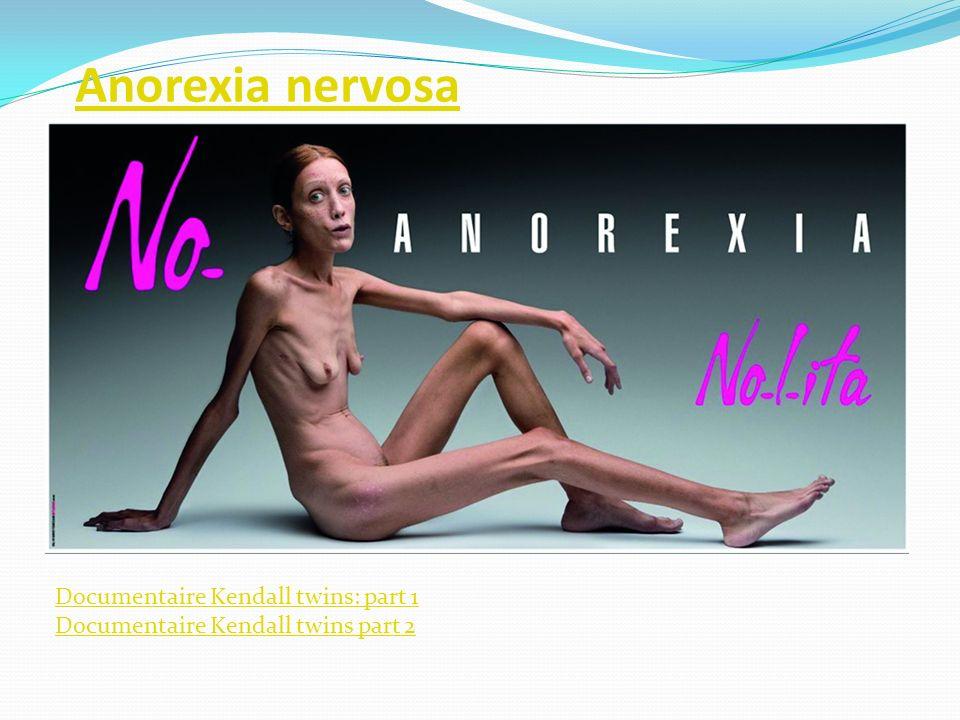 Anorexia nervosa is een eetstoornis.