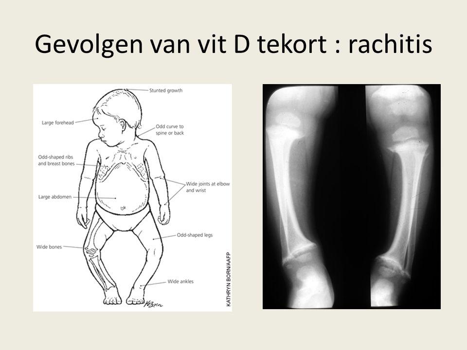 Gevolgen van vit D tekort : rachitis