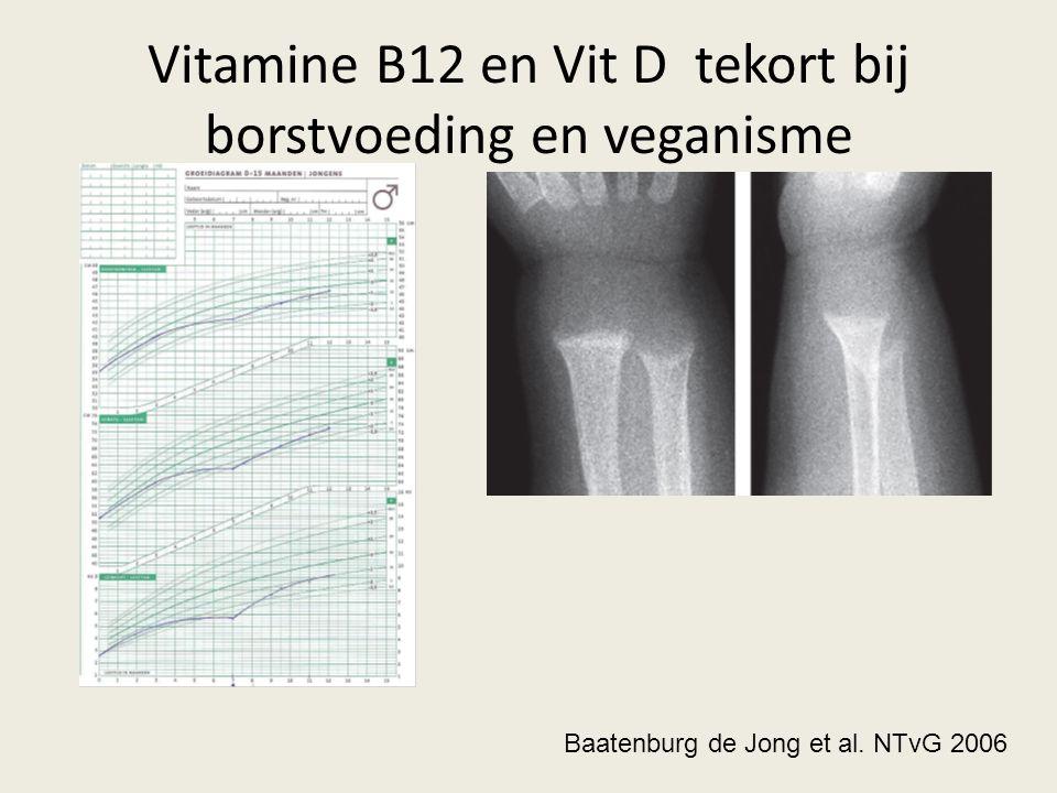 Vitamine B12 en Vit D tekort bij borstvoeding en veganisme Baatenburg de Jong et al. NTvG 2006