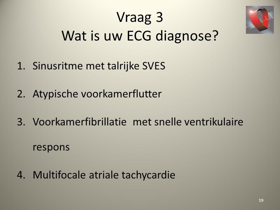 Vraag 3 Wat is uw ECG diagnose? 1.Sinusritme met talrijke SVES 2.Atypische voorkamerflutter 3.Voorkamerfibrillatie met snelle ventrikulaire respons 4.