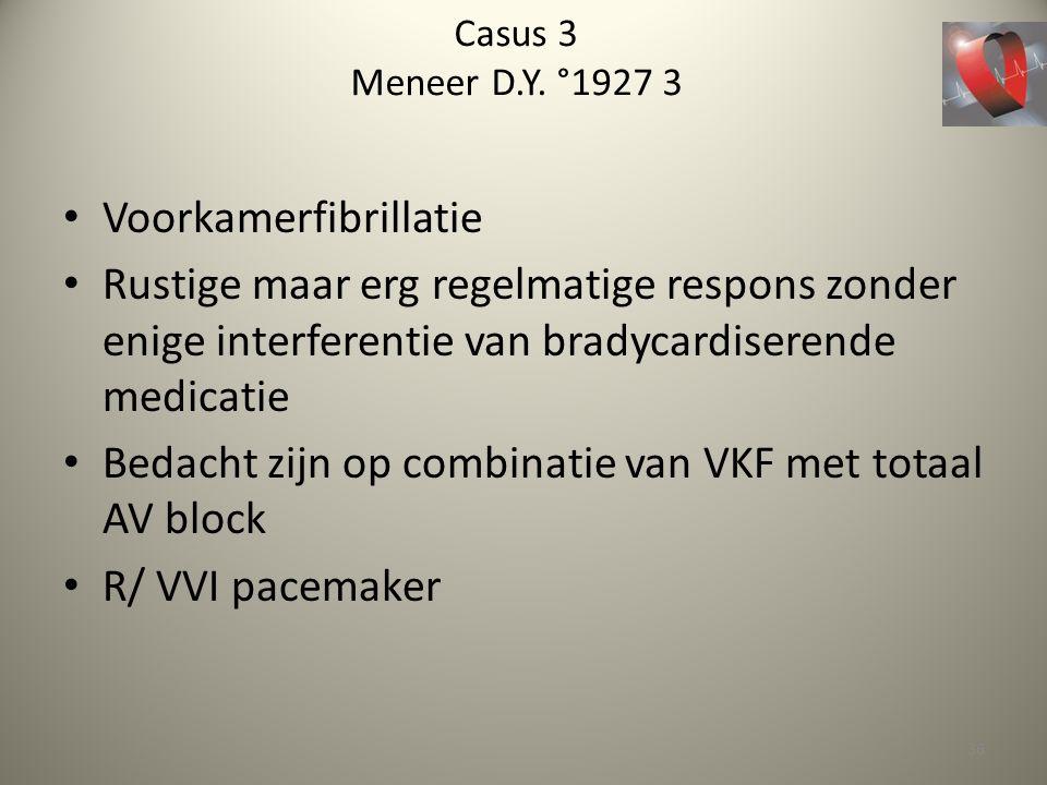 Casus 3 Meneer D.Y. °1927 3 Voorkamerfibrillatie Rustige maar erg regelmatige respons zonder enige interferentie van bradycardiserende medicatie Bedac