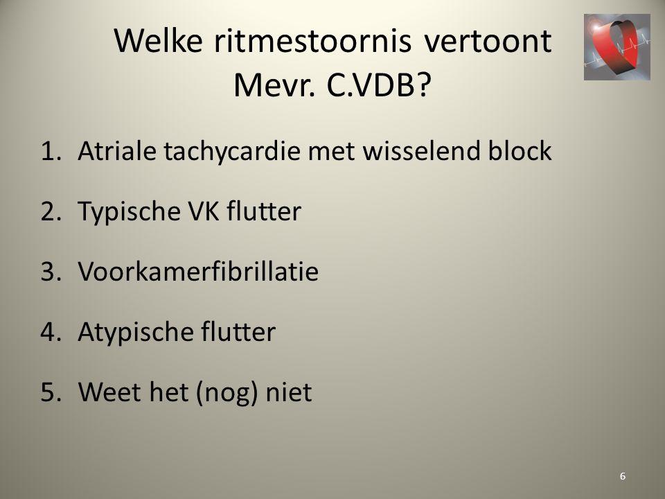 Welke ritmestoornis vertoont Mevr. C.VDB? 1.Atriale tachycardie met wisselend block 2.Typische VK flutter 3.Voorkamerfibrillatie 4.Atypische flutter 5