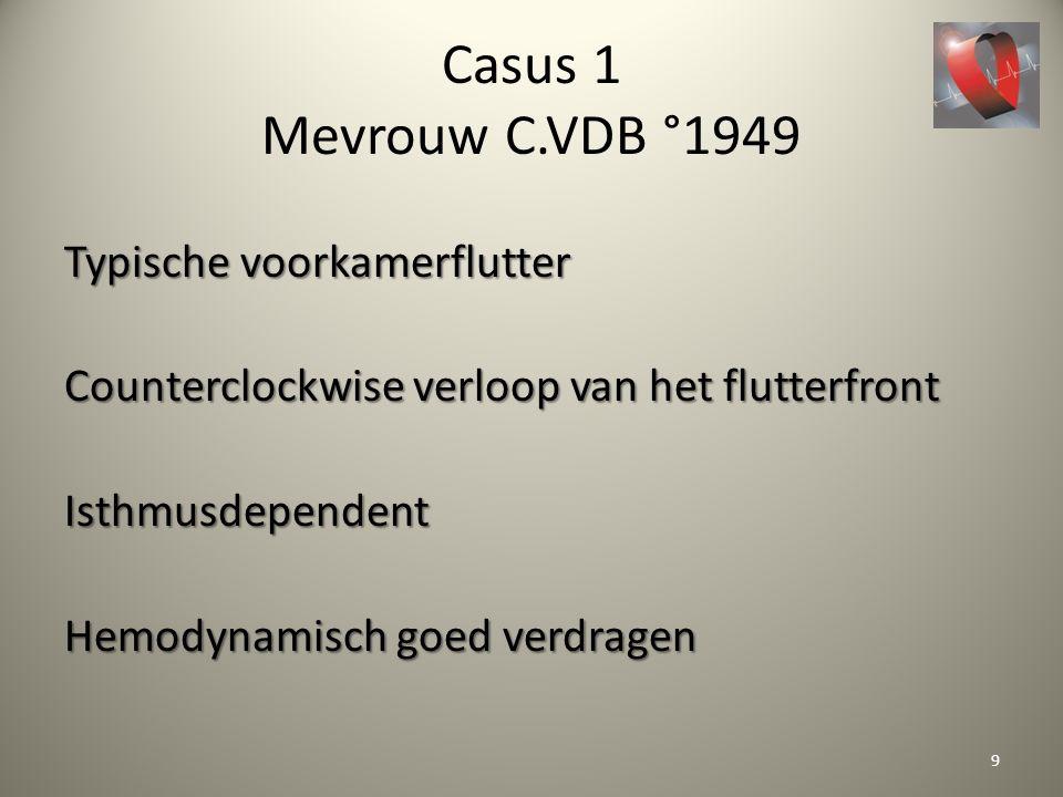 Casus 1 Mevrouw C.VDB °1949 Typische voorkamerflutter Counterclockwise verloop van het flutterfront Isthmusdependent Hemodynamisch goed verdragen 9