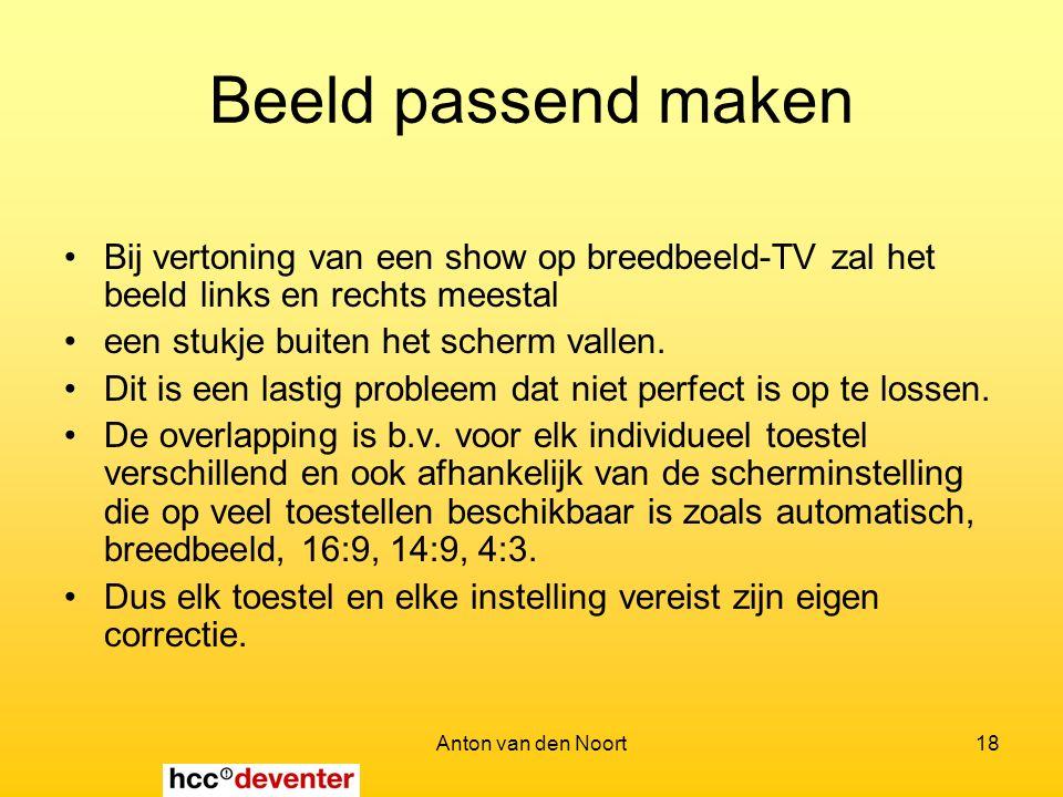 Anton van den Noort18 Beeld passend maken Bij vertoning van een show op breedbeeld-TV zal het beeld links en rechts meestal een stukje buiten het scherm vallen.
