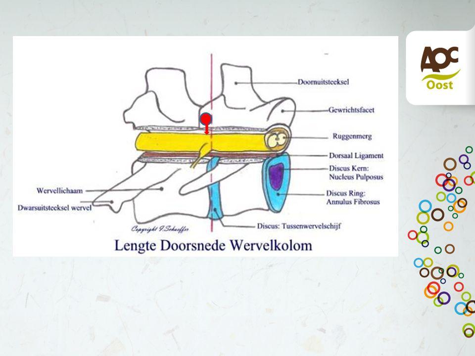 3. Vertical tripping Verplaatsing van de cranio dorsale oppervlak in het wervelkanaal Meestal C6 of C7 Mogelijke oorzaak diskdegeneratie en of instabi