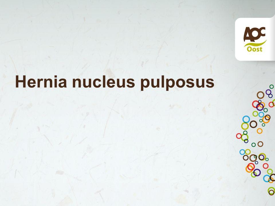 Hernia nucleus pulposus