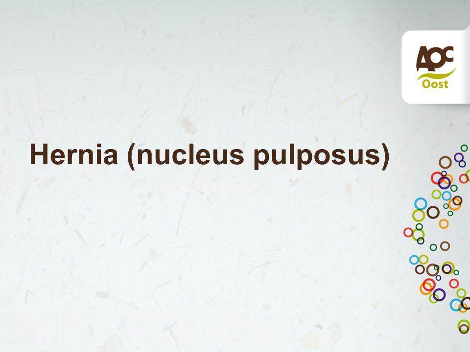 Hernia (nucleus pulposus)