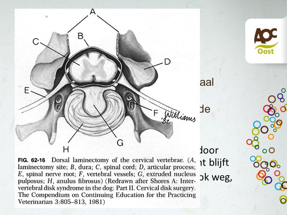 Dorsale laminectomie Meest logische operatie Dorsale deel wervelboog met spinaal uitsteeksel verwijderen Ook dura mater en deel omringende spieren weg