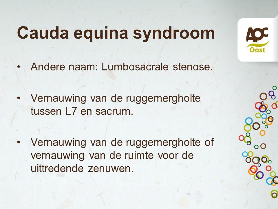 Cauda equina syndroom Andere naam: Lumbosacrale stenose. Vernauwing van de ruggemergholte tussen L7 en sacrum. Vernauwing van de ruggemergholte of ver