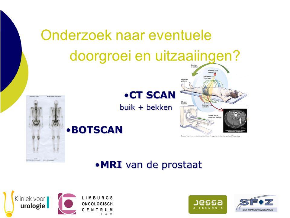 Onderzoek naar eventuele CT SCANCT SCAN buik + bekken buik + bekken BOTSCANBOTSCAN MRIvan de prostaatMRI van de prostaat doorgroei en uitzaaiingen?