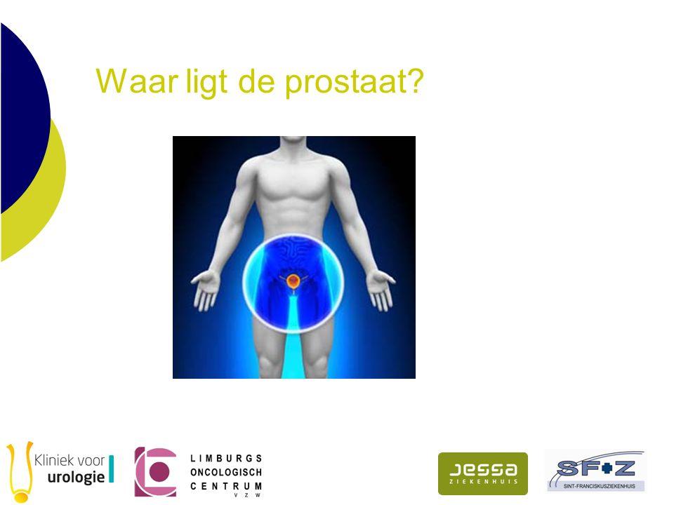 Waar ligt de prostaat?