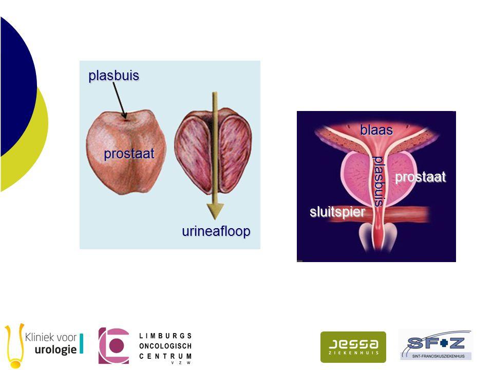 plasbuis prostaat urineafloop blaas prostaat plasbuis plasbuis sluitspier