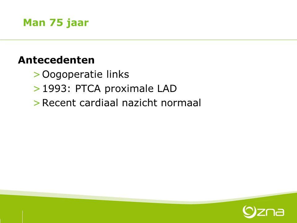 Man 75 jaar Antecedenten >Oogoperatie links >1993: PTCA proximale LAD >Recent cardiaal nazicht normaal