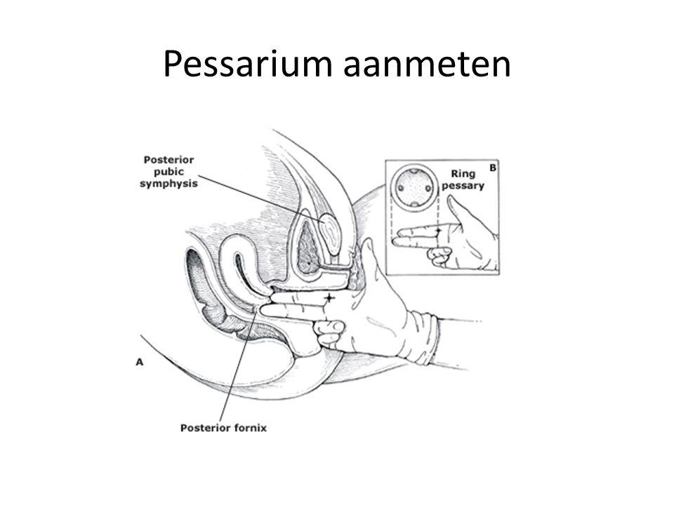 Pessarium aanmeten