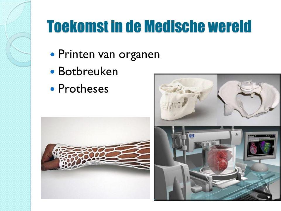 Toekomst in de Medische wereld Printen van organen Botbreuken Protheses