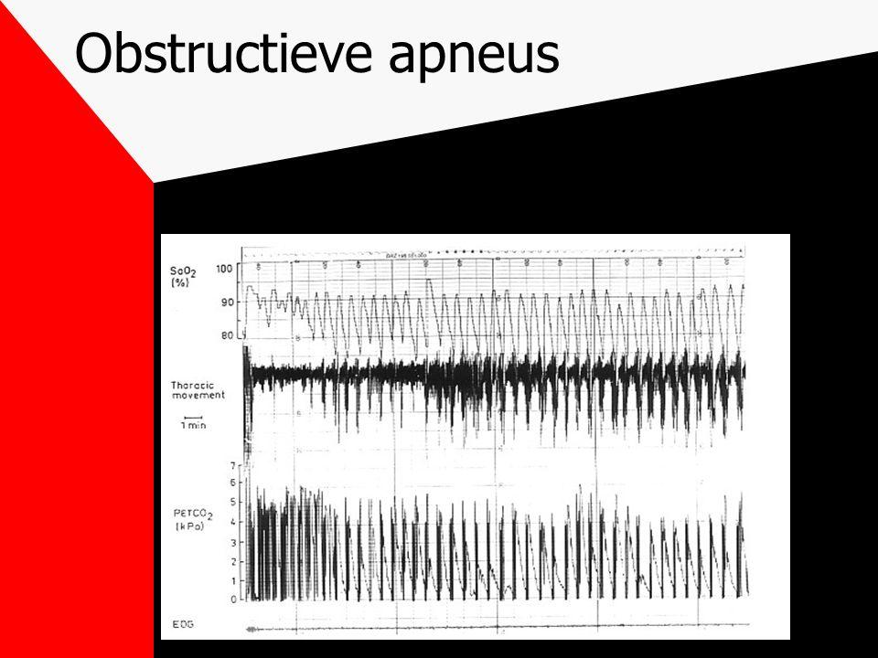 Obstructieve hypopneu Partiële obstructie bovenste luchtweg > 10 seconden > 50% daling van oro-nasale luchtstroom doorgaan van de adembewegingen