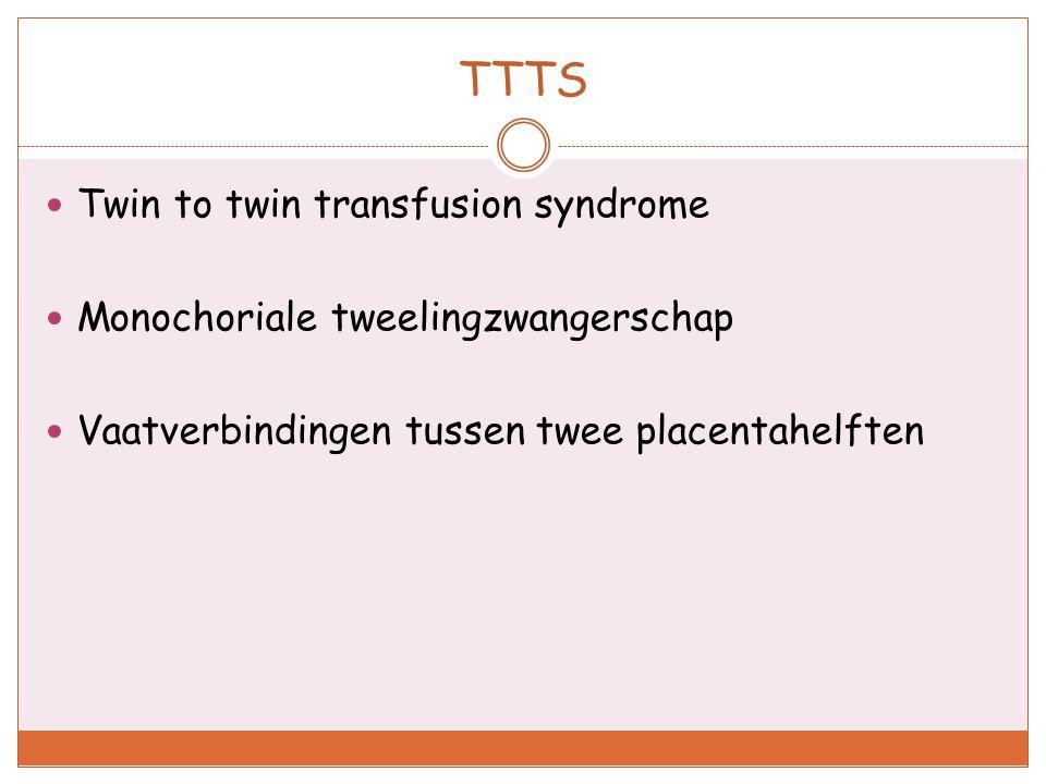 TTTS Twin to twin transfusion syndrome Monochoriale tweelingzwangerschap Vaatverbindingen tussen twee placentahelften