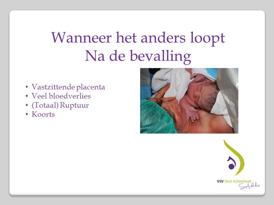 Wanneer het anders loopt Na de bevalling Vastzittende placenta Veel bloedverlies (Totaal) Ruptuur Koorts