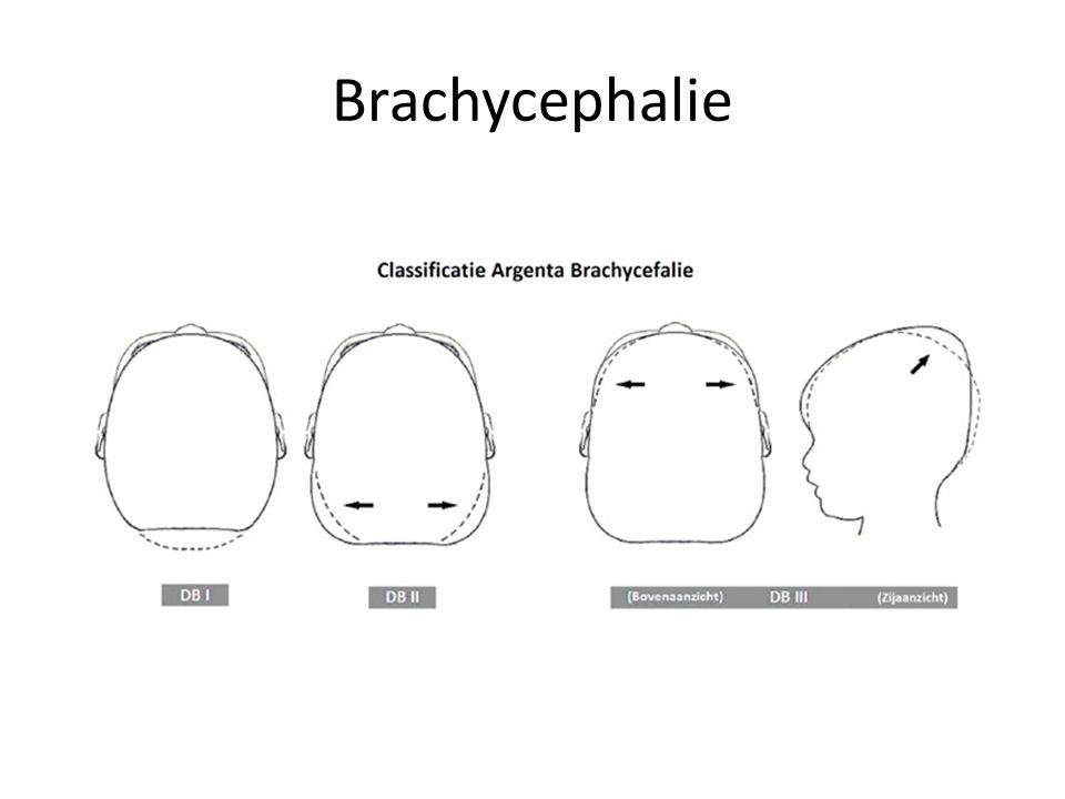 Brachycephalie