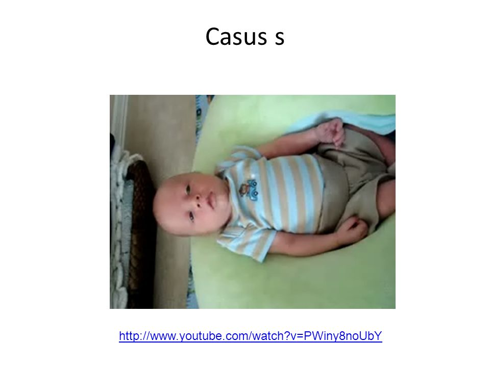 Casus s http://www.youtube.com/watch?v=PWiny8noUbY