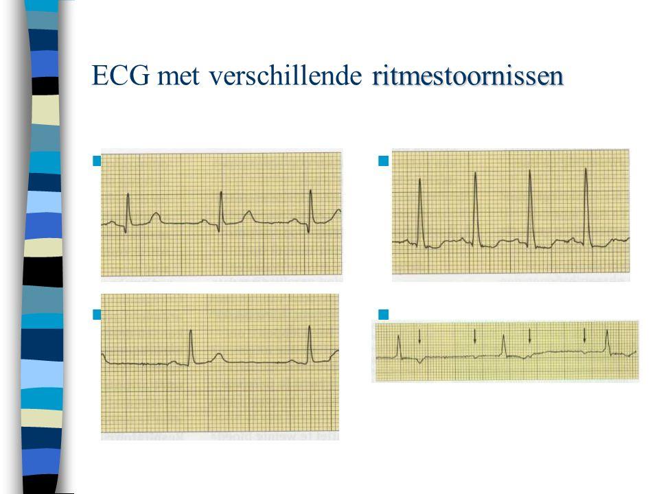 ECG beoordeling