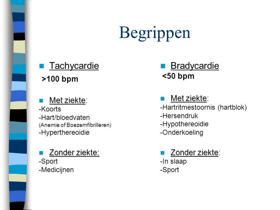 ritmestoornissen ECG met verschillende ritmestoornissen